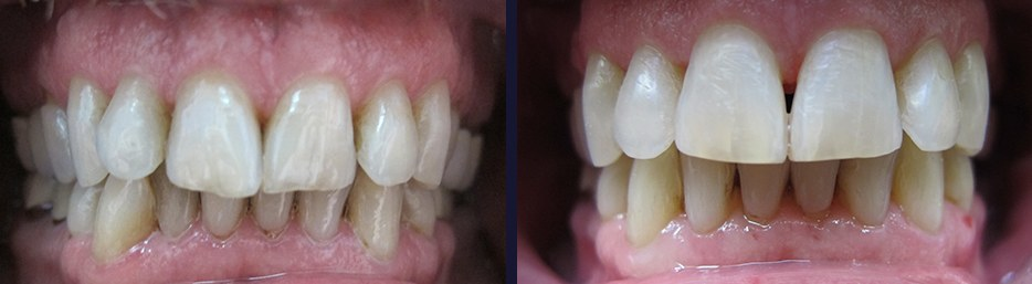 An actual case study showing before and after dental treatment.