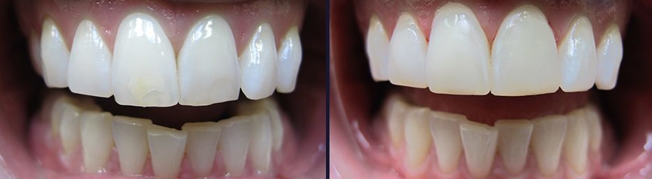 An actual case study from our Cosmetic Dentist in Maple, ON