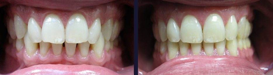 An actual before and after case study showing how Invisalign from our Maple ON dentist can straighten your smile.