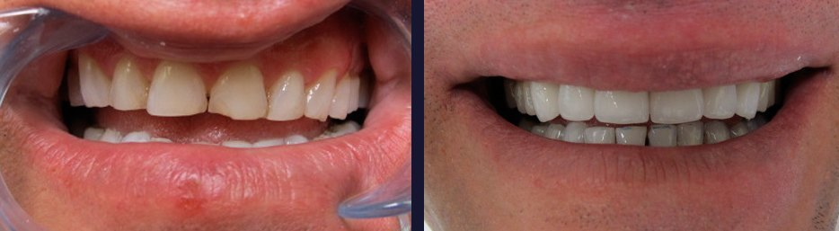 An actual patient of Dr. Gillmore in Maple, ON before and after treatment.