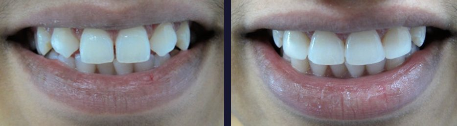 An actual porcelain veneers case study from our Maple Ontario dental practice.